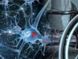 AGENCIJA ZA LJEKOVE: Lijek Lemtrada za multiplu sklerozu izaziva infarkt