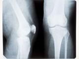 NOVA EVOLUCIJA: Tokom 20. vijeka ljudi su dobili kost više
